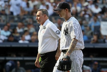 A.J. Burnett hurt his hand in frustration